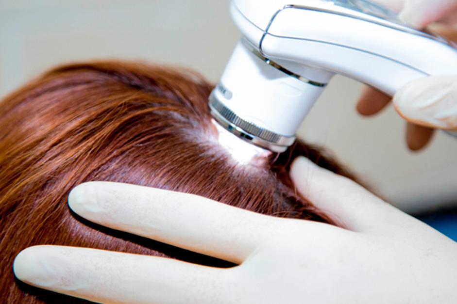 Касторовое масло для волос отзовик